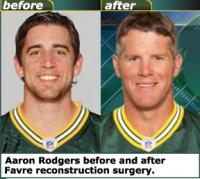 Green Bay Packers' Aaron Rodgers undergoes facial reconstruction surgery